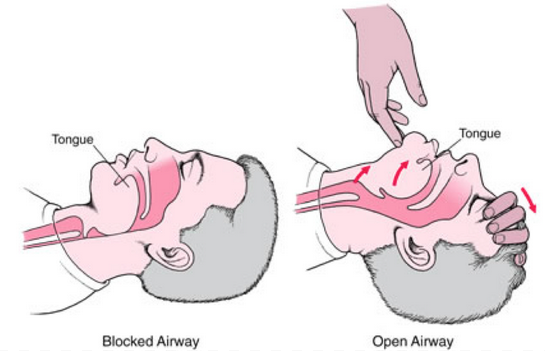 How to manually open airway by tipping victim's head back